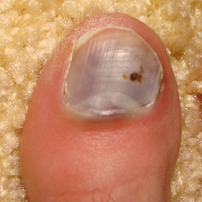 Why Do Toenails Turn Black?
