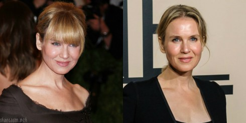 Did Renee Zellweger Have A Face Lift?