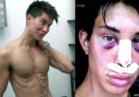 Justin Jedlica: human Ken doll Had 128 plastic surgeries