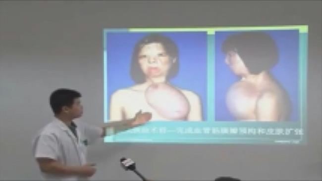 New face built from her breast ... Surgeon Jiang Chenhong shows how he transferred tissue grown on Xu Jianmei's chest. Source: Supplied