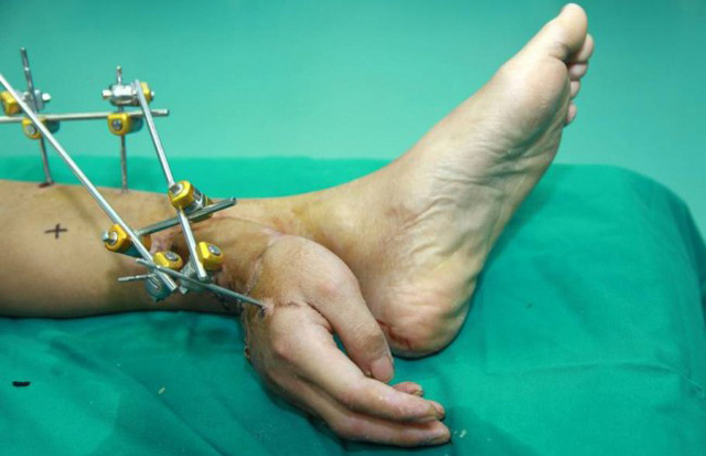 Severed body parts can be reattached elsewhere on the body, but usually to areas with a better blood supply than the ankle, BBC News reports. (BBC News)