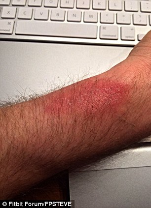 fitbit rash: Fitbit Offers Refund To Rash Victims