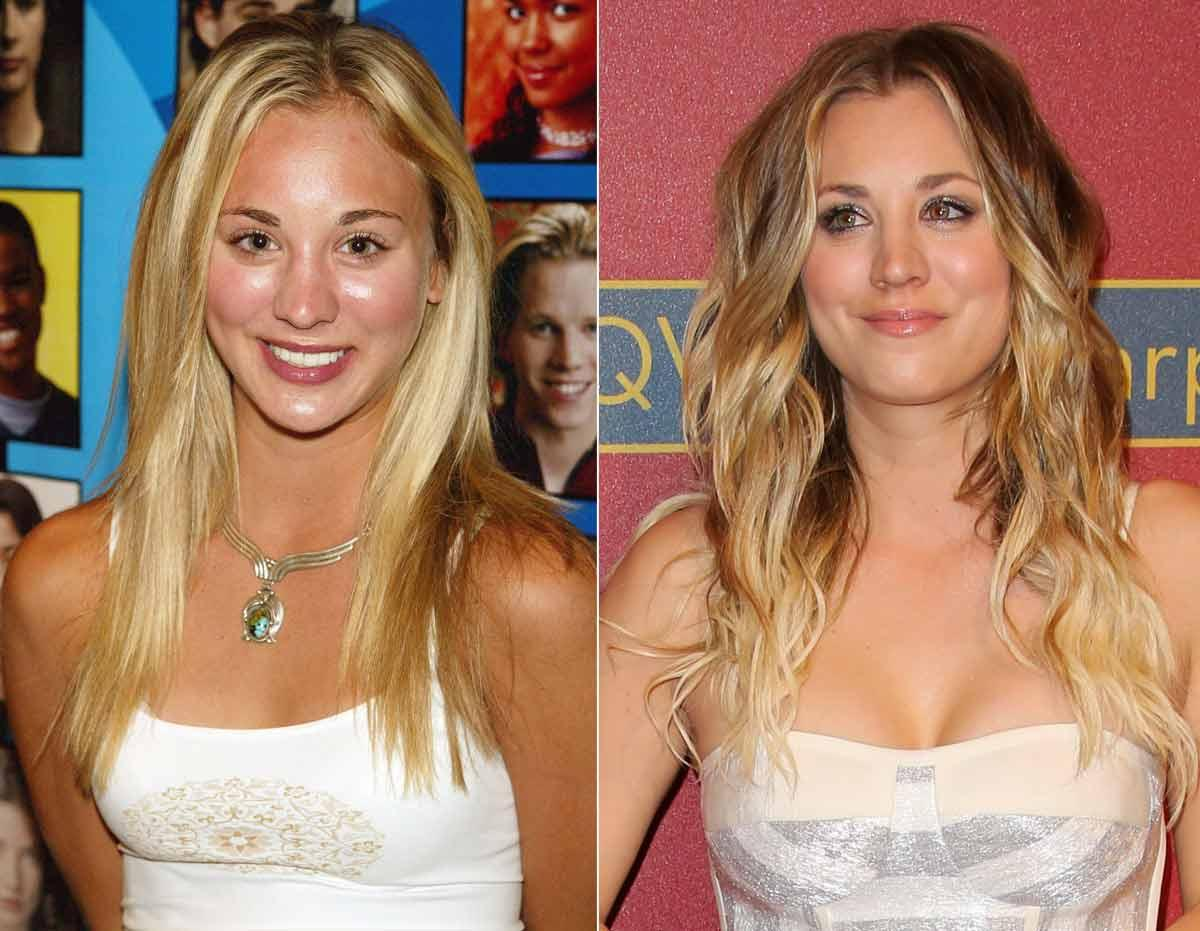PAUL ARCHULETA/FILMMAGIC; KEVIN WINTER/IMAGEDIRECT Kaley Cuoco admitted she got breast implants at age 18, called it the best decision she ever made.