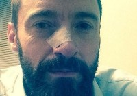 Hugh Jackman has another skin cancer removed urges fans to wear sunscreen